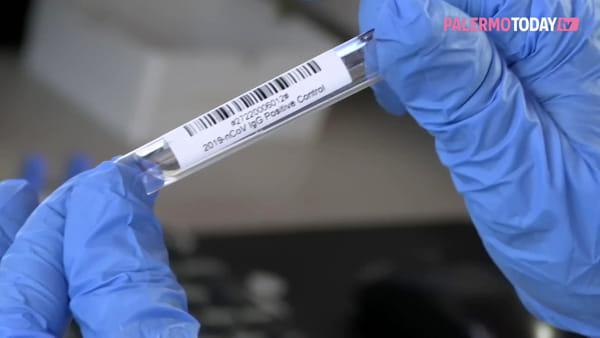VIDEO | Coronavirus, ecco come funzionano e perché sono importanti i test sierologici